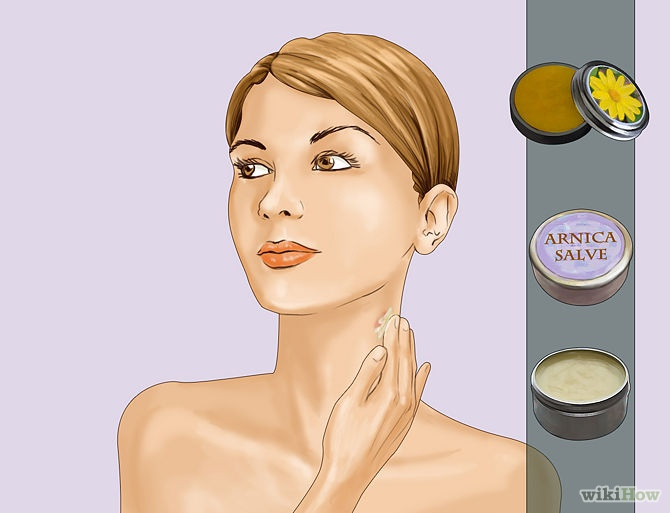 How-To-Remove-a-Hickey-tip-4